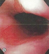 oisofagos-barrett-c