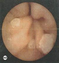 asyrmati-endoskopiki-kapsoula-h2