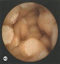 asyrmati-endoskopiki-kapsoula-h3