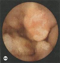 asyrmati-endoskopiki-kapsoula-h4