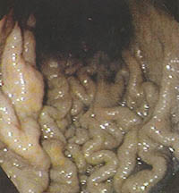gastritida-loimoxi-3